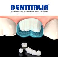 Dentitalia - Protesi Dentarie, Corona in Ceramica-Zirconia - Scopri le nostre proposte