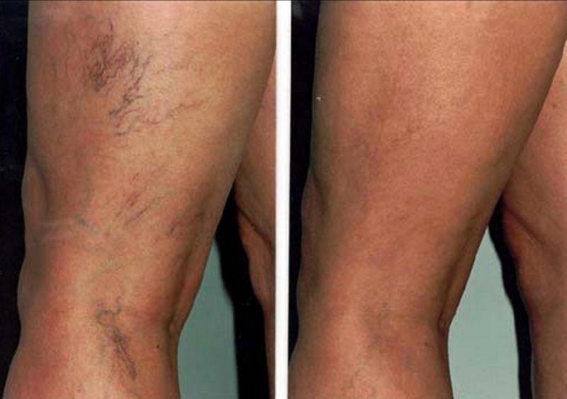 promozione rimozione capillari gambe bergamo