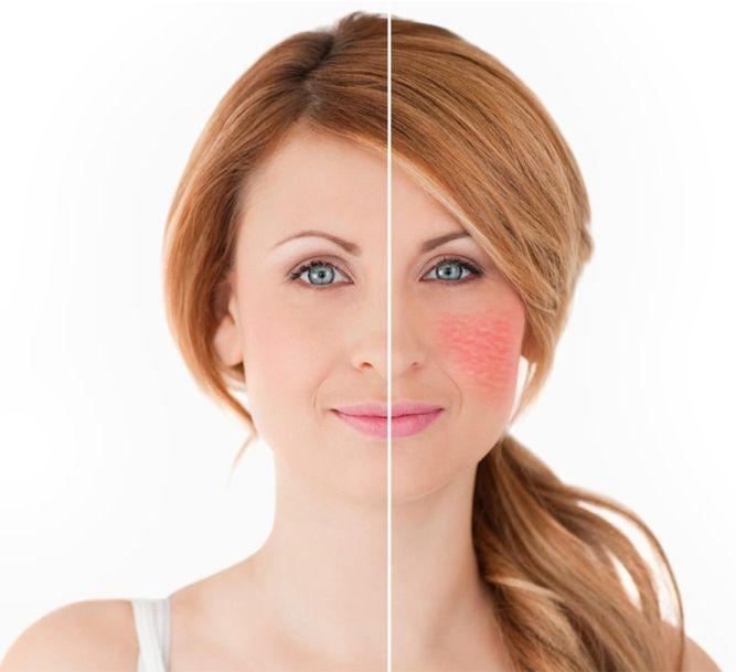 offerta trattamenti couperose viso bergamo