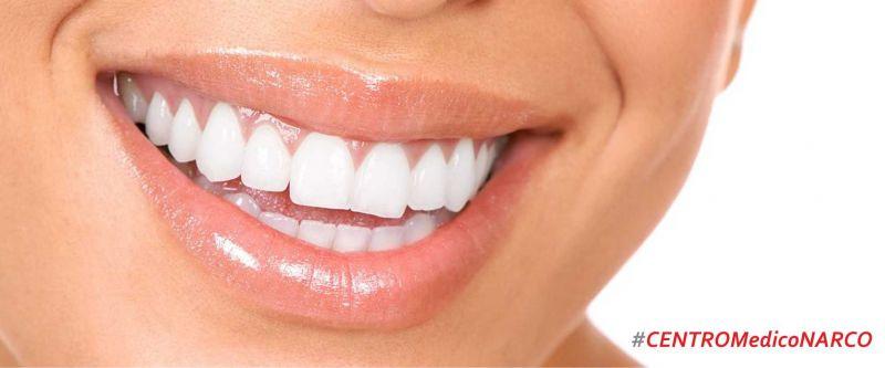 estetica dentale imperia savona