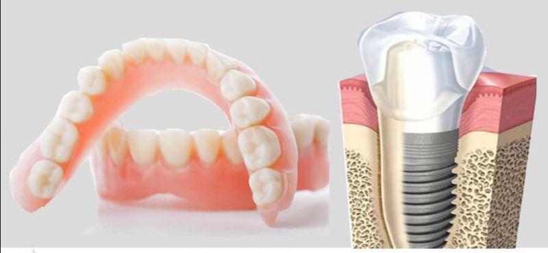 Protesi dentali ed Implantologia - Imperia Savona