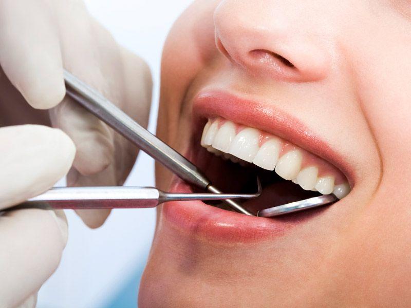 offerta apparecchi ortodontici- occasione dentiere protesi - promozione dentista vicenza