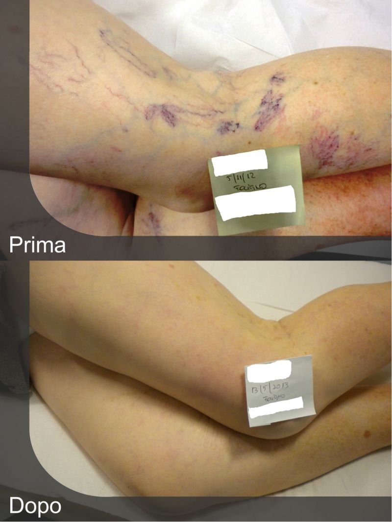 Offerta scleroterapia per il trattamento di varici e capillari Todi - Tracchegiani