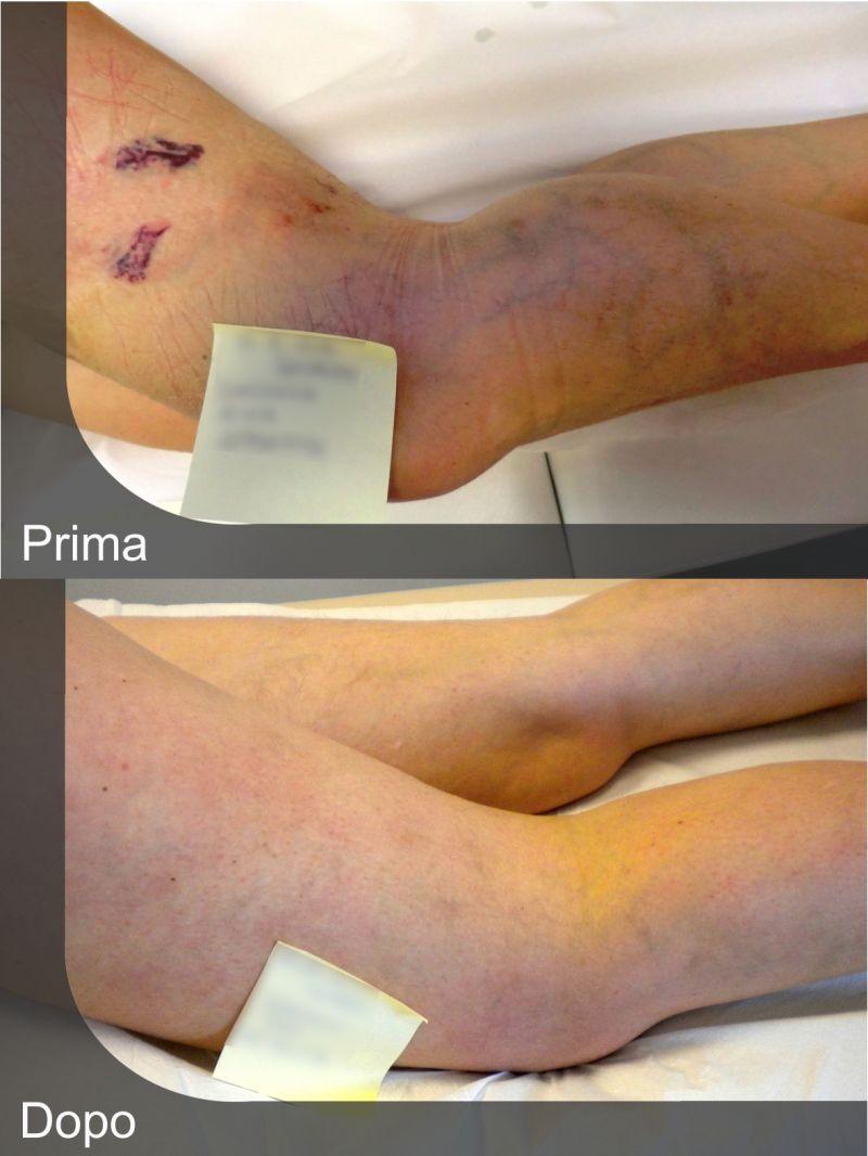 Offerta scleroterapia per il trattamento di varici e capillari Gubbio - Tracchegiani