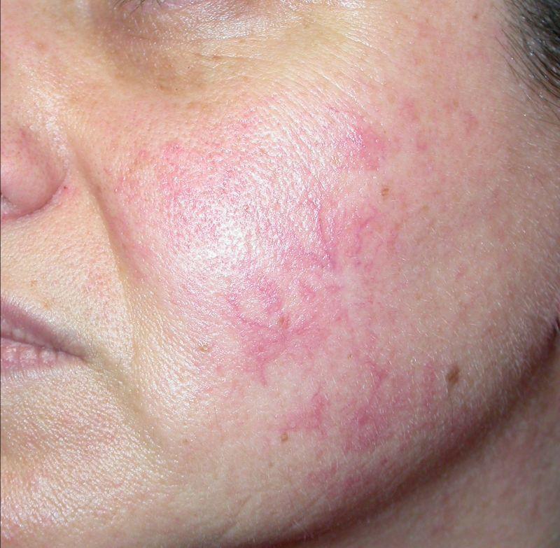 Offerta diatermocoagulazione per couperose Gubbio - Tracchegiani
