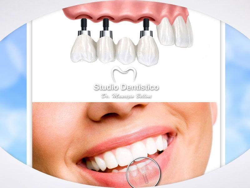 offerta implantologia dentale - promozione impianti fissi dentali - dott maurizio bellini