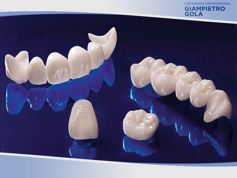 Offerta Realizzazioni Ricostruzioni Dentali Ceramica - Gola Giampietro