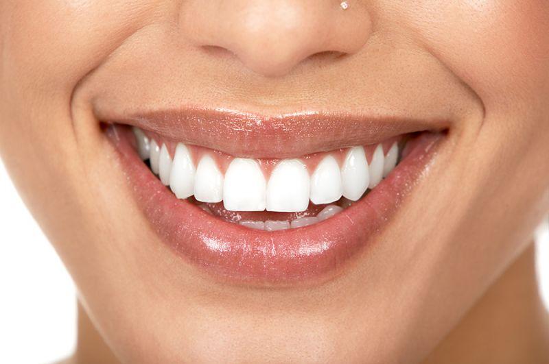 Sbiancamento dentale con laser Deruta - Pulizia denti Deruta - Dentalike