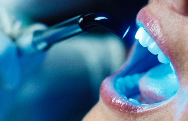 Promozione sbiancamento dentale professionale - offerta rimozione tartaro macchie denti Vicenza