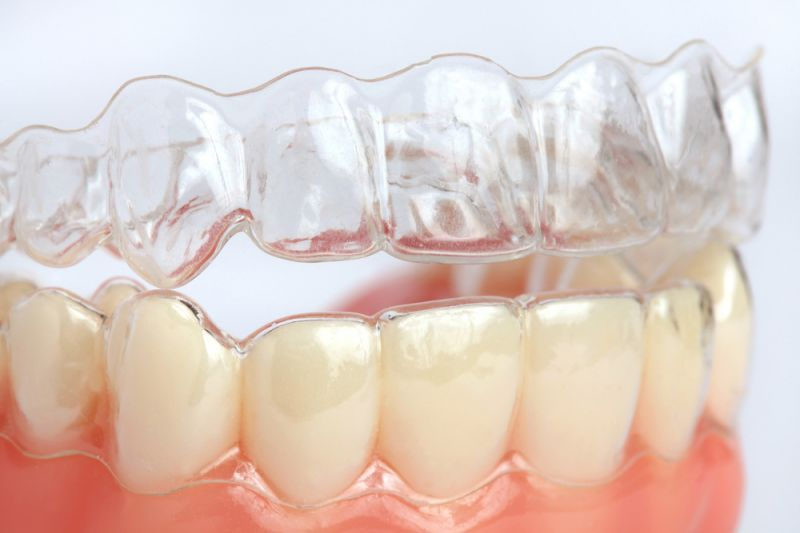 Offerta apparecchio ortodontico invisibile- Offerta ortodonzia invisibile Modena Sassuolo Carpi