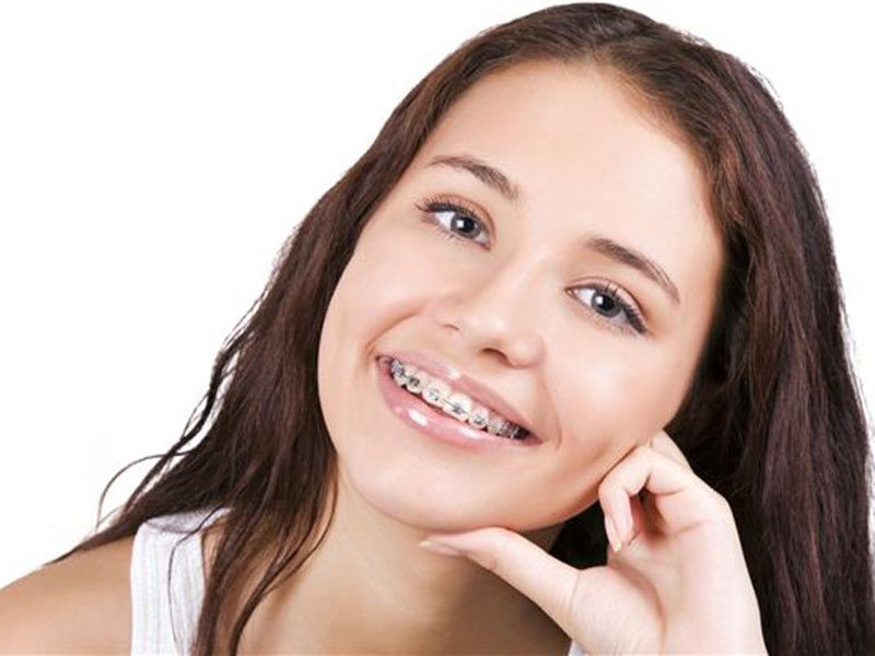 Offerta apparecchio fisso e mobile - Offerta riallineare i denti dentista Modena Sassuolo Carpi