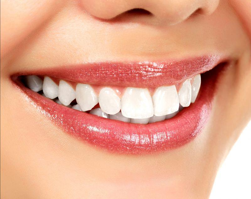 Offerta allineatori dentali invisalign - Offerta apparecchio personalizzato Castelfranco Emilia