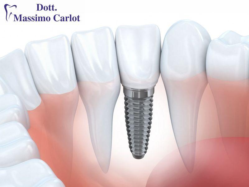 Offerta consigli utili implantologia dentale - Promozione impianti per denti di qualita'