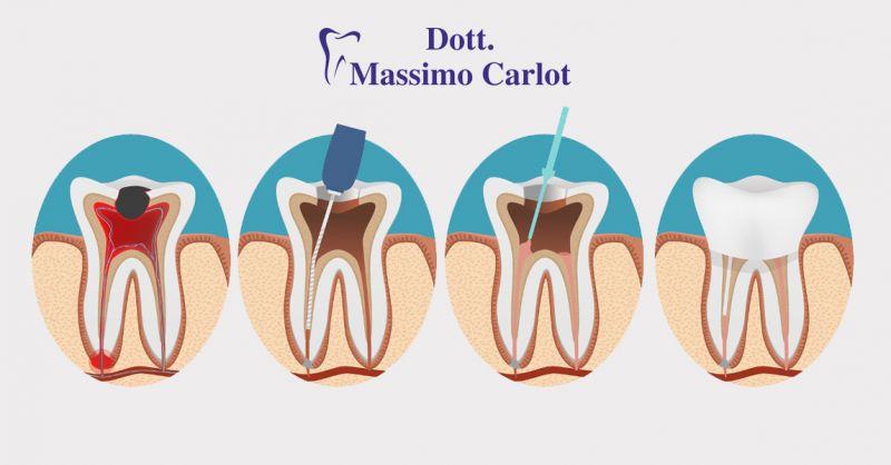 Offerta servizio professionale di endodonzia terapia canalare a Treviso - Dott.Massimo Carlot
