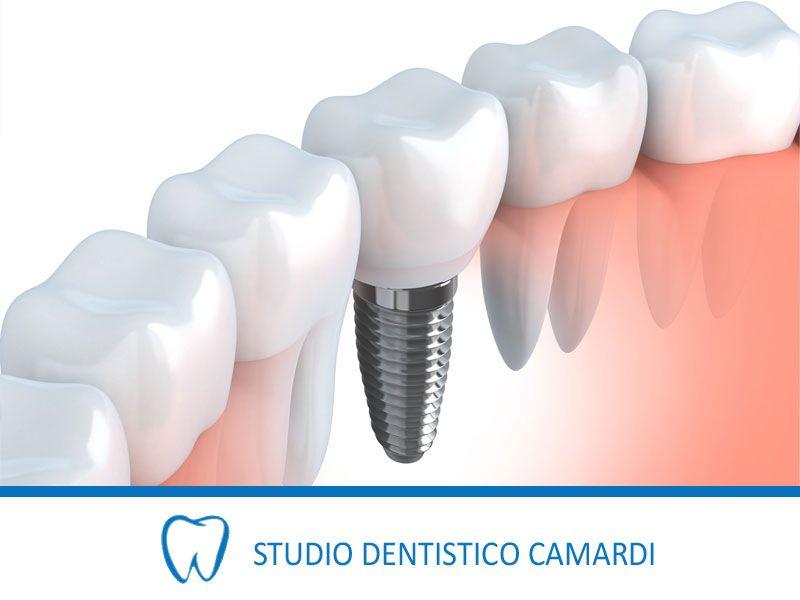 offerta implantologia dentale fissa provincia - impianti dentali fissi provincia