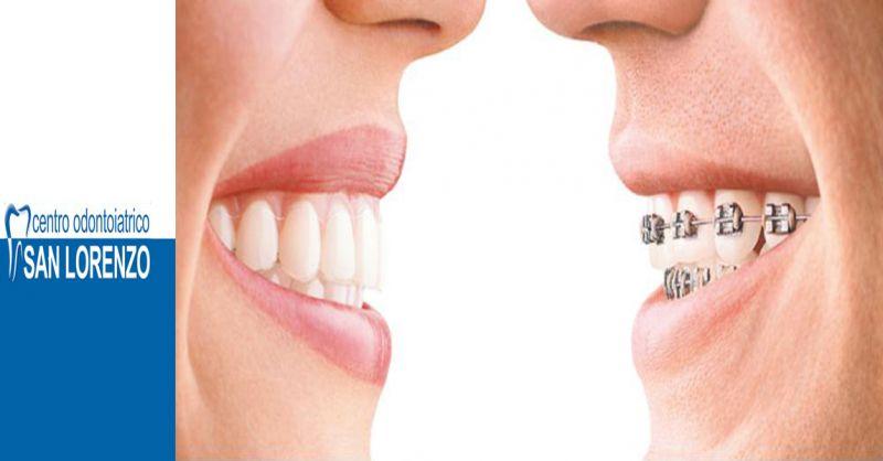offerta centro odontoiatrico correzione denti - occasione apparecchi denti mobili e fissi Roma