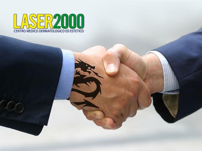 Offerta Rimozione Tatuaggi - Promozione Rimozione Angiomi - Centro Laser 2000