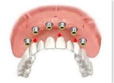 implantologia  all on six