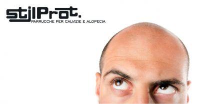 stilprot offerta parrucche naturali nascondere problemi alopecia calvizie