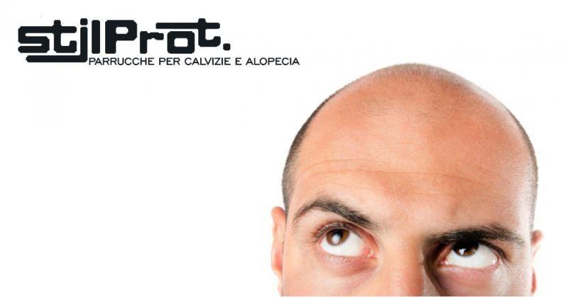 STILPROT - offerta parrucche naturali nascondere problemi alopecia calvizie
