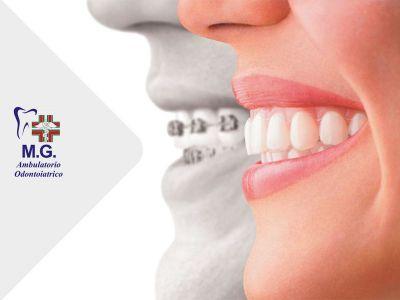 promozione ortodonzia catelfranco veneto offerta dentista studio dentistico mg