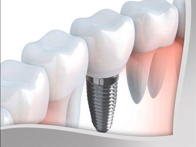 offerta implantologia promozione servizio implantologia studio dentistico mg