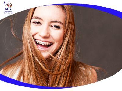 offerta ortodonzia denti promozione ortodonzia dentale studio dentistico mg