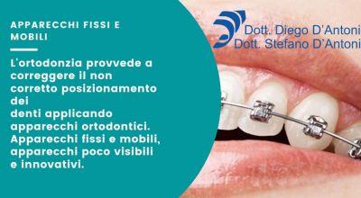 occasine apparecchi fissi e mobili innovativi a trento offerta apparecchio per i denti invisibile a trento