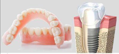 protesi dentali ed implantologia imperia savona