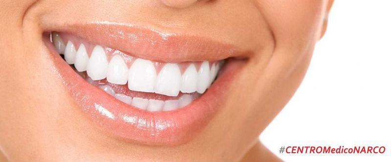 Estetica Dentale - Studio Narco