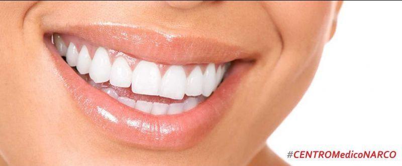 Estetica Dentale - Imperia Savona | Studio dentistico NARCO