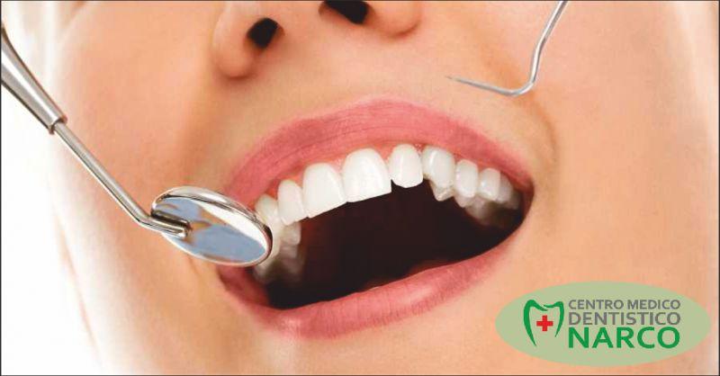 studio dentistico narco offerta estetica dentale - occasione sbiancamento denti imperia