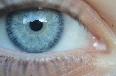 iridologia imperia visite iridologiche imperia parafarmacia le ferriere