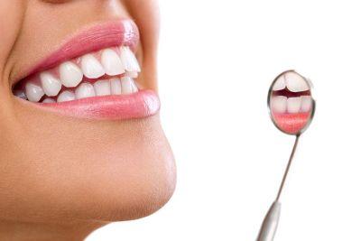 promozione sbiancamento dentale professionale offerta rimozione tartaro macchie pigmenti