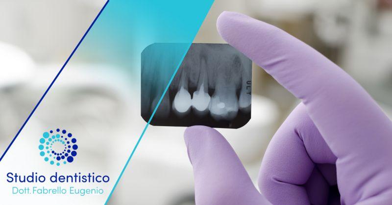 Offerta Servizio Radiologia odontoiatrica Valdagno - Occasione Panoramica Dentale dove farla Vicenza