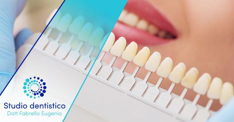 Offerta Trattamento professionale Sbiancamento denti Valdagno - Occasione Trattamento Rimozione Macchie denti