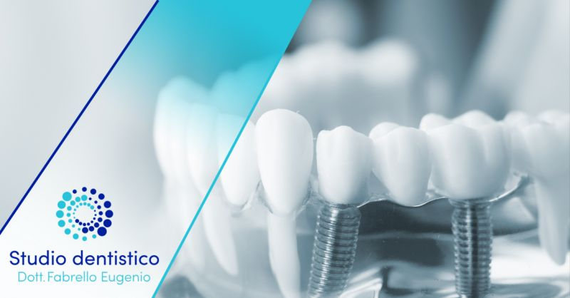 Offerta Specialisti in Ponti dentali fissi Vicenza - Occasione Applicazione Corone dentali di qualità