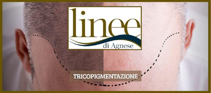 LINEE DI AGNESE Promozione trattamento tricopigmentazione - Offerta correzione cuoio capelluto