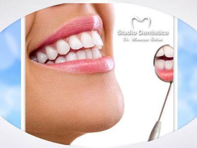offerta odontoiatria estetica promozione rimozione estetica dentale dott bellini maurizio