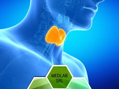 offerta check up tiroide prenotazione analisi check up tiroideo vittoria scioglitti