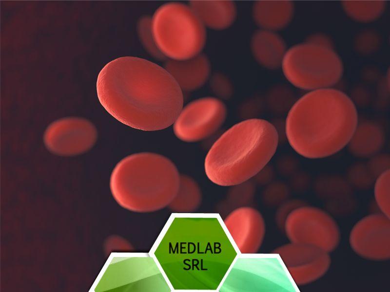 offerta check up anemia - prenotazione check up sangue anemia vittoria scioglitti