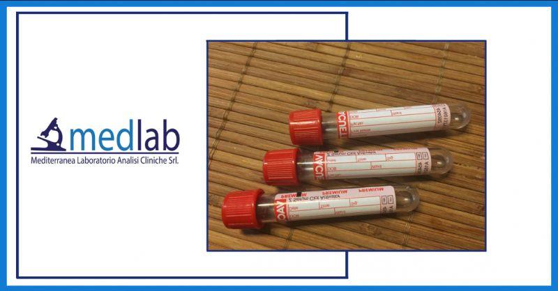 offerta pacchetto esami del sangue ragusa - promozione analisi complete del sangue ragusa