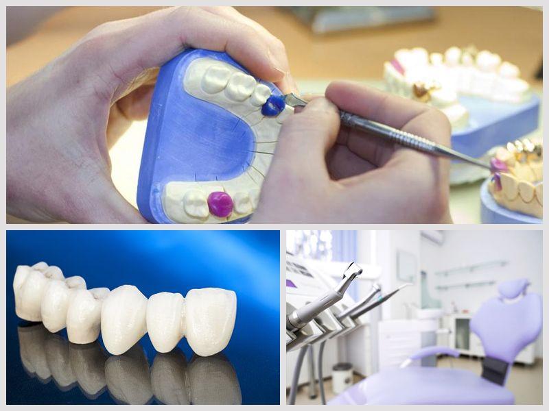 Offerta Laboratorio Odontoprotesico - Promozione Odontoiatria - Laboratorio Odontoproteico
