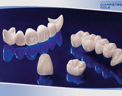 offerta realizzazioni ricostruzioni dentali ceramica gola giampietro