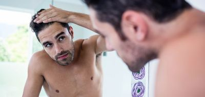 offerta soluzioni diradamento capelli occasione soluzione calvizia protesi capelli su misura