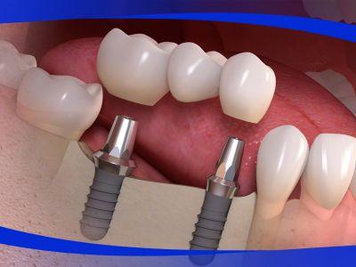 offerta su impianti promozione protesi totale e parziale centro dentale signori