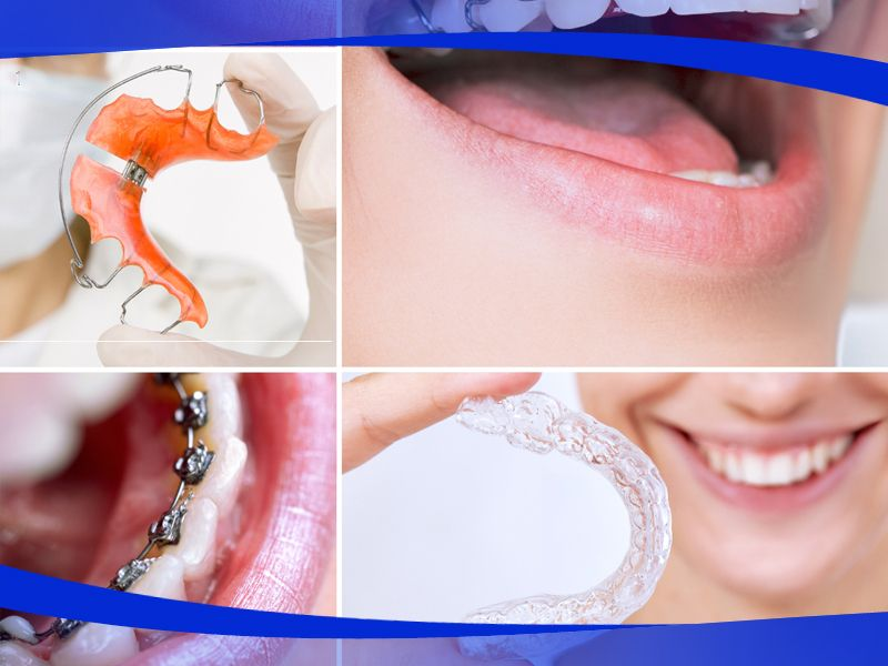 Offerta ortodonzia invisibile - Promozione ortodonzia classica - Centro Dentale Signori