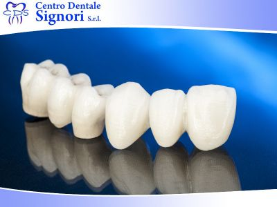 offerta corone e ponti altivole promozione corone e ponti altivole centro dentale signori