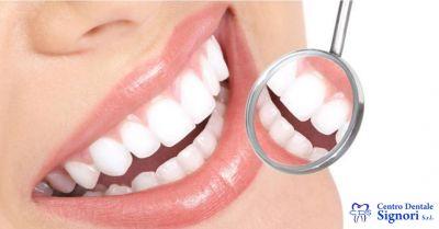 centro dentale signori offerta studio dentistico occasione trattamenti parodontologia
