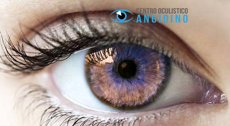 Centro Oculistico Angioino offerta visite oculistiche - occasione patologie occhio Napoli